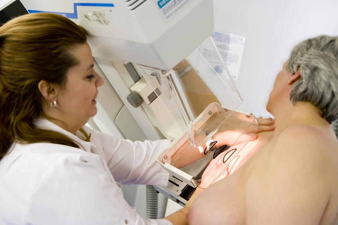 Nouvelles stratgies thrapeutiques dans le cancer du sein